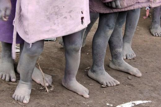 feet of batwa tribe pygmies in Ruhengeri Rwanda