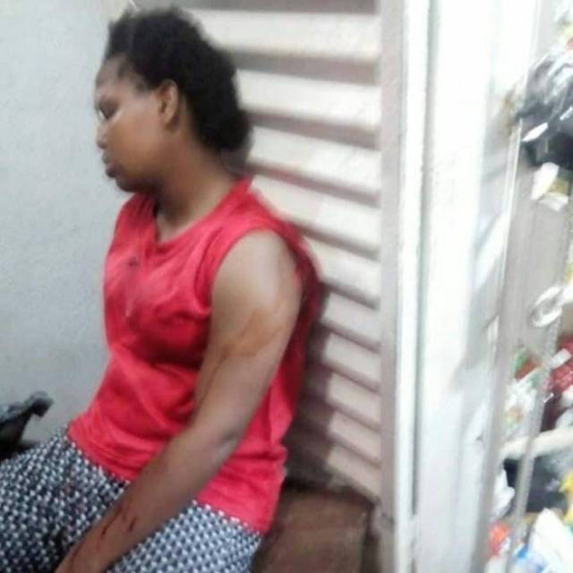 100 Level Female FUPRE Student Attacked, Stabbed Multiple Times (Graphic)