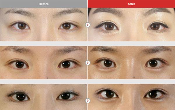 aegyo-item-plastic-surgery