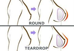 vip-teardrop