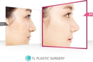 TLPS-rhinoplasty