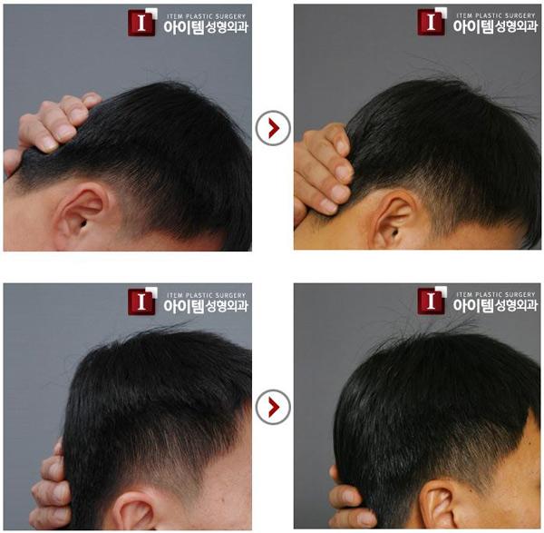 Back of Head Surgery