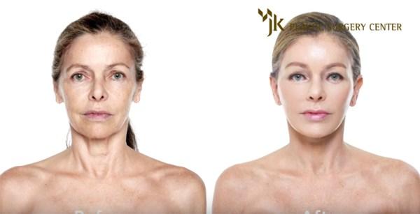 anti-aging treatment JK Plastic Surgery