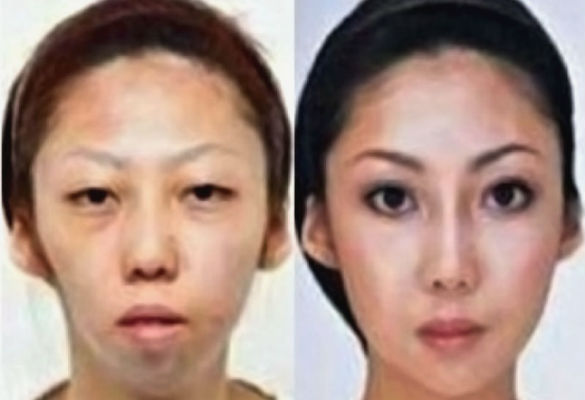 A Decision Gone so Wrong: What is the Price of Artificial Beauty? (1/2)