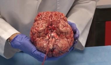 Đoạn video về một bộ não người mới được cắt bỏ này đã khiến cả thế giới mê mẩn 10