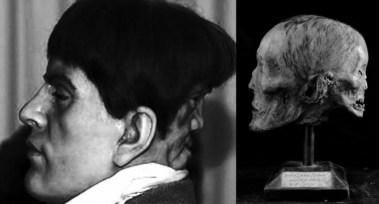 het demonische gezicht van Edward Mordrake