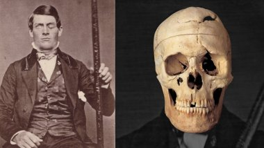 Phineas Gage: Ο άντρας που έζησε μετά τον εγκέφαλό του σπρώχτηκε με μια σιδερένια ράβδο! 10