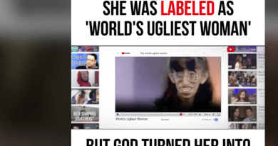 "She was labled as ""World's ugliest woman"" – But God turned her into an amazing princess –   POWERFUL!"
