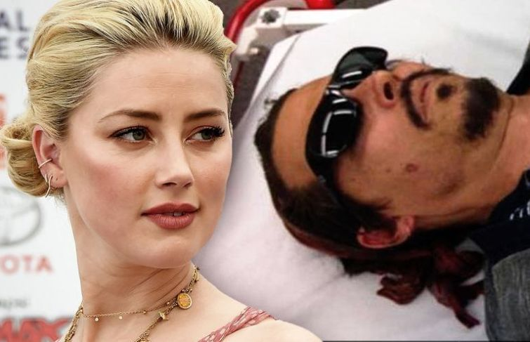 Amber Heard In Denier Over Burning Johnny Depp With Cigarette