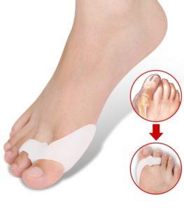 piciorul noga în varicoză)