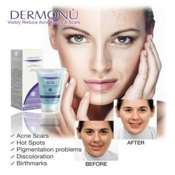 Dermonu Facial Gel