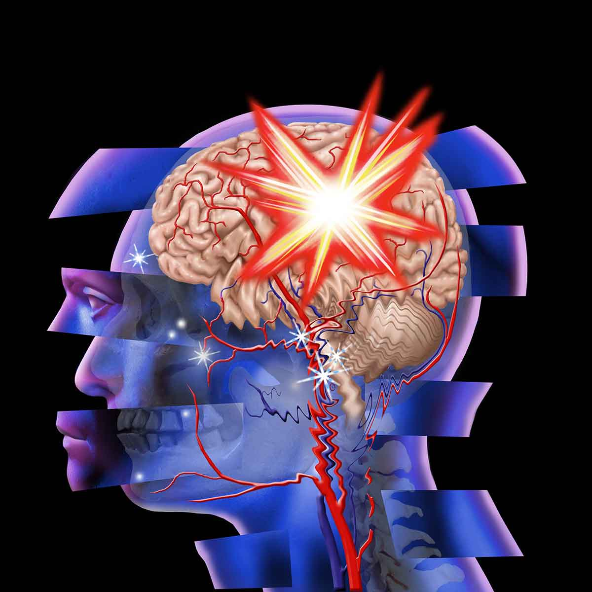 Traumatic Brain Injury And Drug Abuse