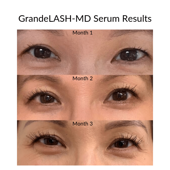 Lash Serum Results