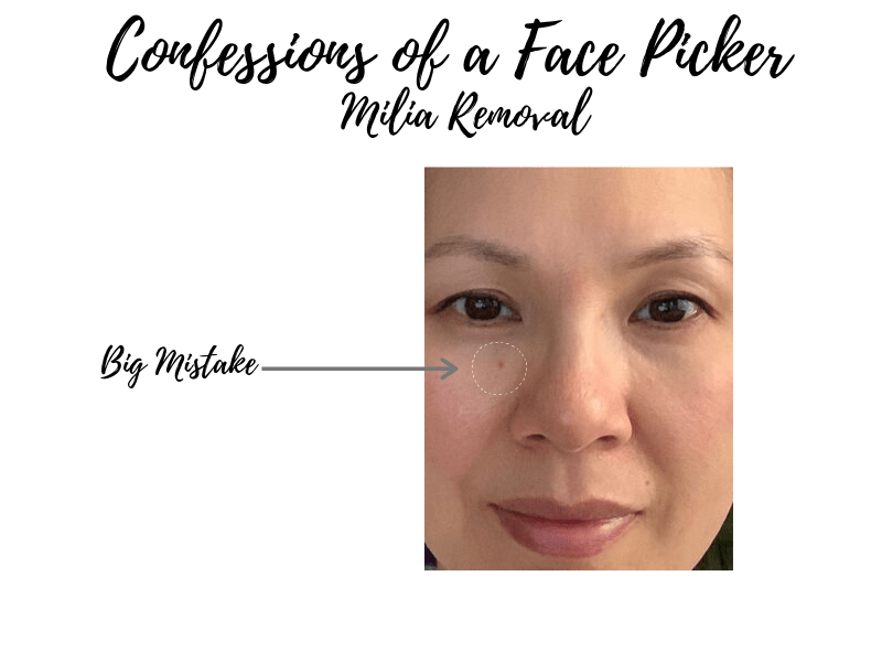 Milia Removal Gone Wrong