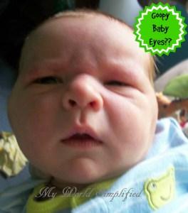 Goopy, Yucky Baby Eyes