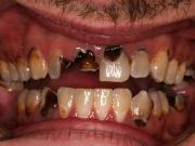 4 FOODS THAT CAN DAMAGE YOUR TEETH