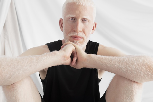 Albinism; The Beautiful Skin Condition