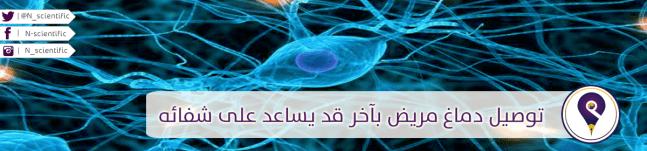توصيل دماغ