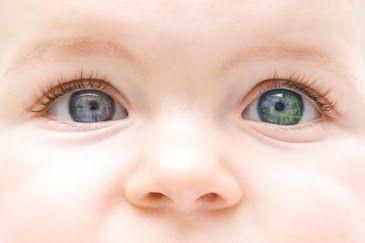 طفل رضيع ذو عينين متغايرتين