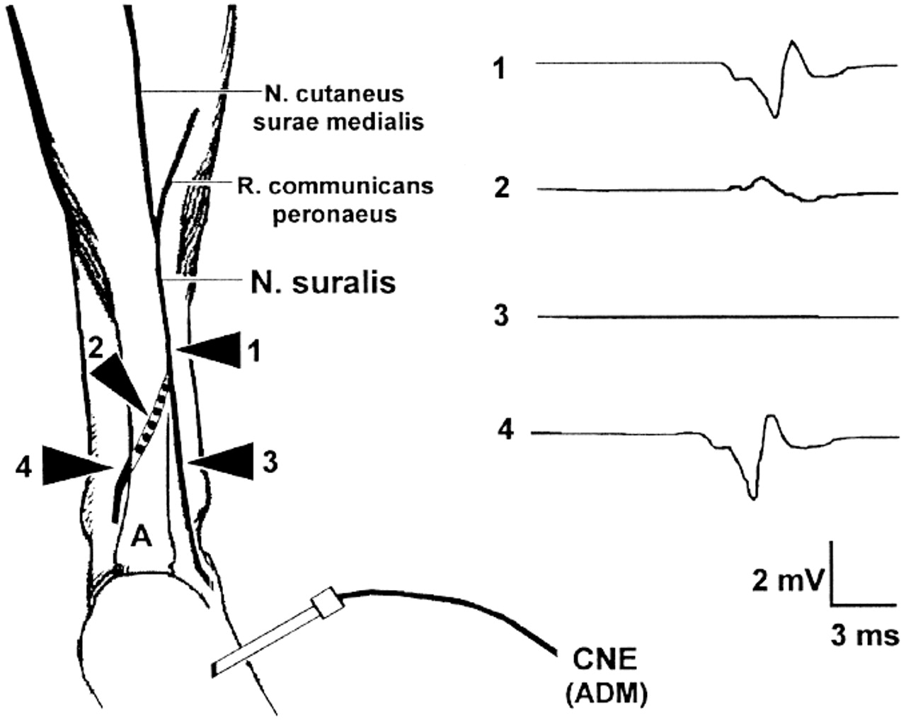 Nerve Motor