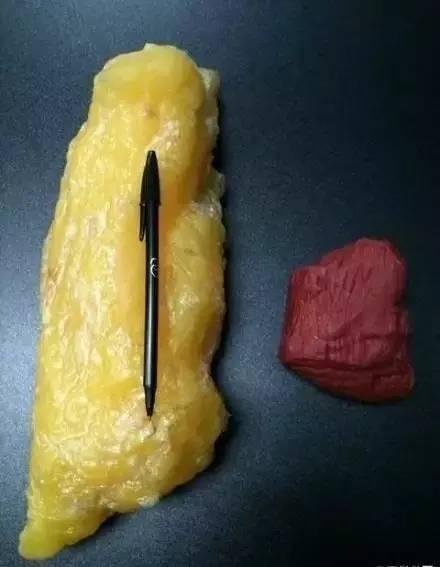 4斤脂肪和4斤肌肉區別竟然這么大?如何才能一周減掉一公斤肉!
