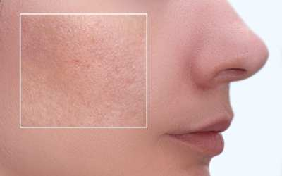 What Causes Clogged Pores?