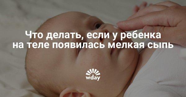 У ребенка сыпь без температуры: мелкая и красная, чешется ...