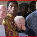 【アルビノ狩り】白い黒人達がアフリカマラウイを中心に絶滅危機!その悲しすぎる理由とは?