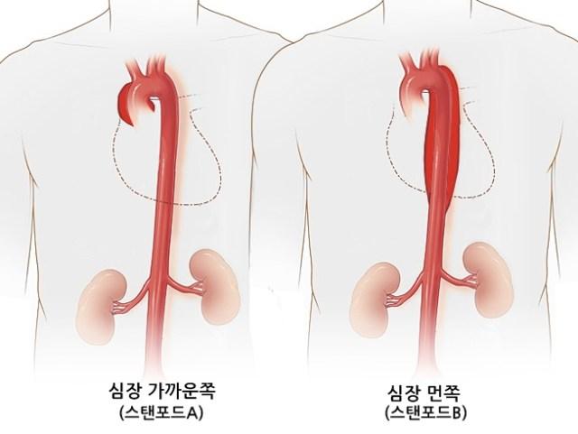 대동맥박리