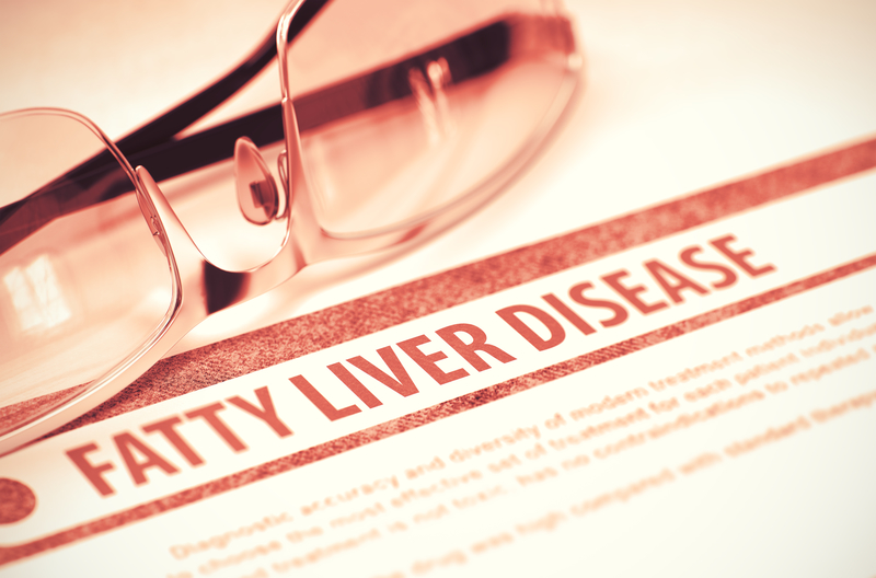 10 steps to prevent fatty liver Disease