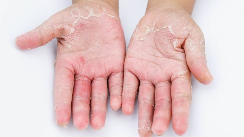 Dry Skin with Bumps