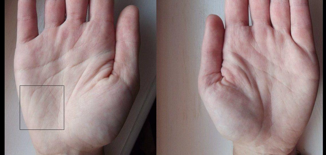 изменениях нижний марс на руке фото представляли всех тонкостей