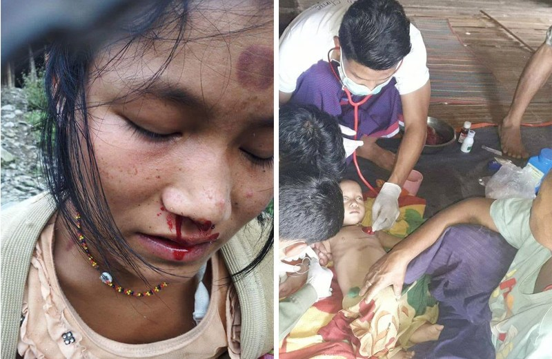 Unidentified disease claims  7 lives in Naga area of Myanmar