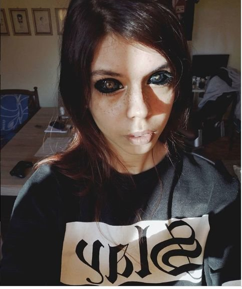Pretty Model Goes Completely Blind After Getting Her Eyeballs Dyed (Photos)