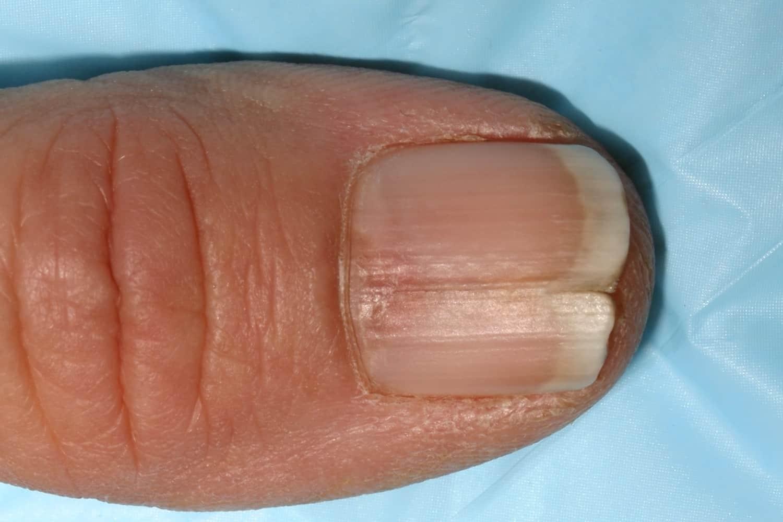 Split Fingernails Onychoschizia Symptoms Causes Amp Remedies