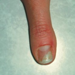 Acrylic Nail Fungus Causes And Treatment