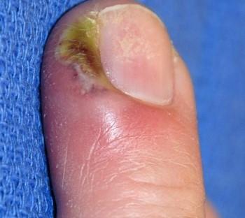 Нарыв под ногтем на большом пальце руки