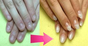 深爪矯正ホワイトグラデーションのアクリルスカルプBefore-After