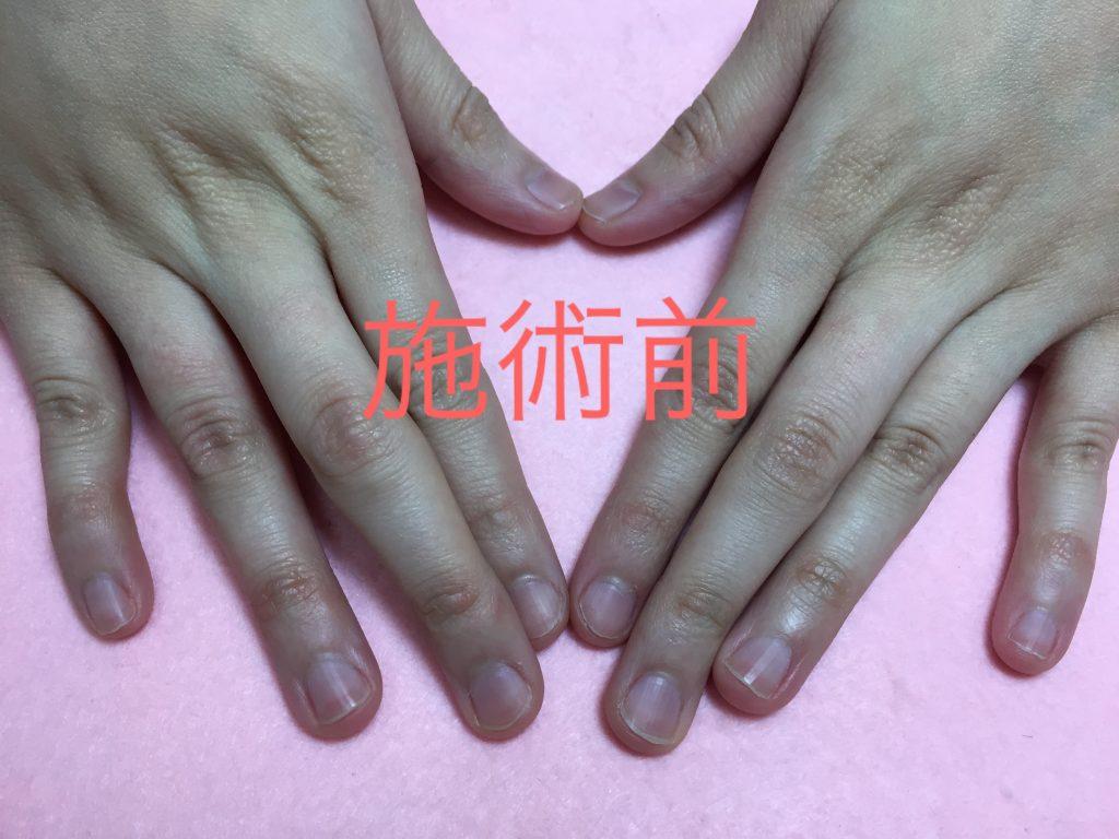 深爪矯正施術前の自爪