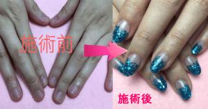深爪矯正アクリルスカルプ(長さ出し)の施術前と施術後