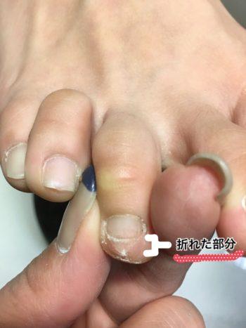 足の爪が折れている様子