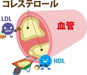 コレステロールを下げる飲み物と食べ物!コレステロールを下げる運動とは?