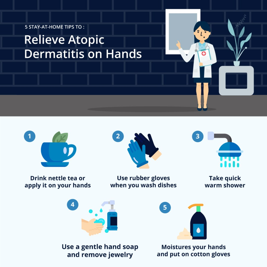 5-Stay-at-Home-Tiips-to-Relieve-Atopic-Dermatitis-on-Hands
