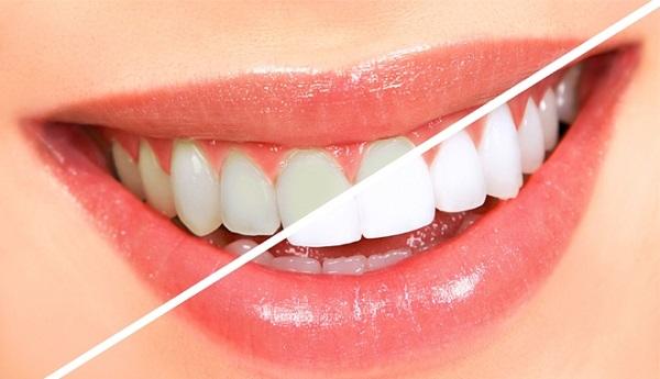 Làm sao sử dụng bột trắng răng an toàn tại nhà