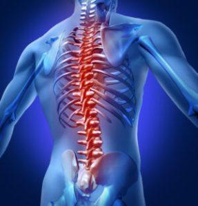 spondylodese, diagnose