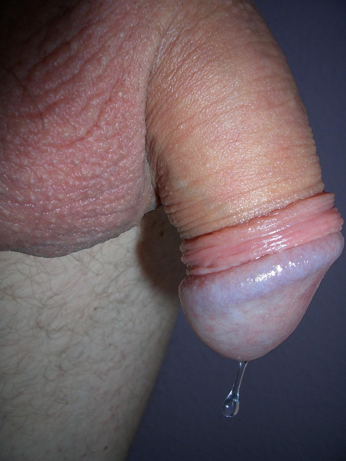 dripping penis pics