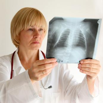 Ученые назвали лучший способ против распространения туберкулеза