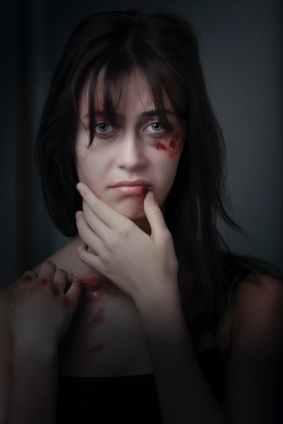 woman with red bruise, uit de comfortzone van slachtoffer van een narcist