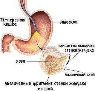 Чем лечить ангину в домашних условиях эффективно. Как лечить ангину народными средствами