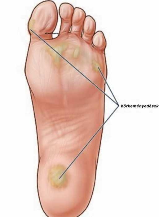 tratamentul oamenilor de varicoze pe picioarele lui mazi
